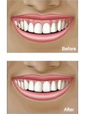 Gum Contouring and Reshaping - Center Of Dental Expertise