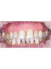 Dental Bonding - Surgery in Greece - Dental Clinic