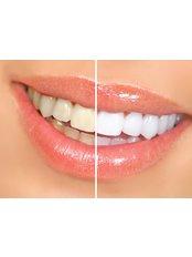 Teeth Whitening - Gentle Dental Clinic - Crete
