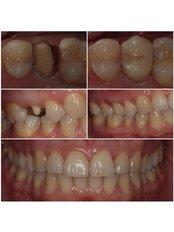 Porcelain Crown - Dr.Tsanaktsidis Dimitris