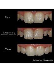 Porcelain Veneers - Dr.Tsanaktsidis Dimitris