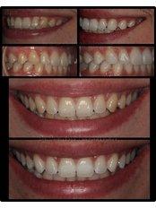 Teeth Whitening - Dr.Tsanaktsidis Dimitris