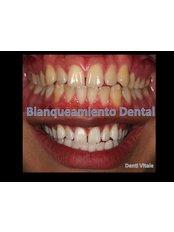 Cosmetic Dentist Consultation - Denti Vitale Especialidades Dentales