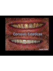 Zirconia Crown - Denti Vitale Especialidades Dentales
