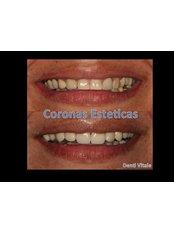 PFM Crown - Denti Vitale Especialidades Dentales