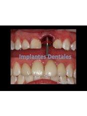 Dental Implants - Denti Vitale Especialidades Dentales