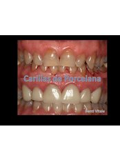 Veneers - Denti Vitale Especialidades Dentales
