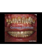 Porcelain Veneers - Denti Vitale Especialidades Dentales