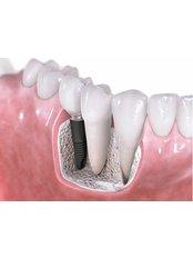 Single Implant - Denti Vitale Especialidades Dentales