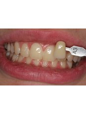 Teeth Whitening - Guatemala Dental Team