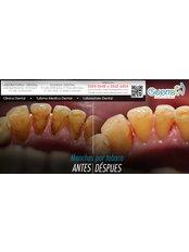 Teeth Cleaning - Guatemala Dental Team