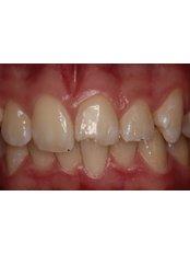 Veneers - Guatemala Dental Team
