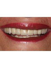 Dental Crowns - Guatemala Dental Team