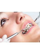 Orthodontic Consultation - The Hong Kong Japanese Dental Clinic