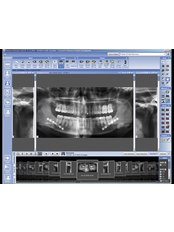 Digital Panoramic Dental X-Ray - Affordable Dentist at WestDent