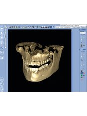 3D Dental X-Ray - Affordable Dentist at WestDent