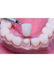Dental Crowns - Dental Network