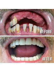 5 day swiss implant system - Tibor Dental