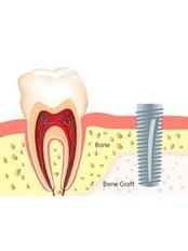 Bone Graft  - Dental Network / Zalakaros Dental