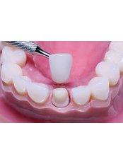 Dental Crowns - Dental Network / Zalakaros Dental