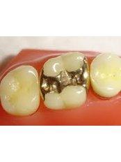 Fillings - Dental Network / Zalakaros Dental