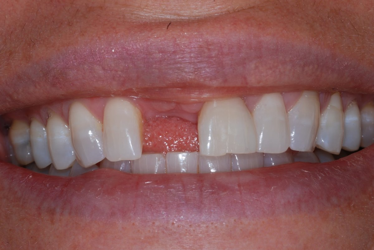 Foods To Eat After Gum Graft