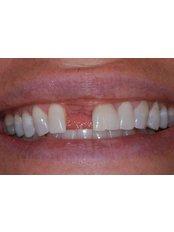 Bone Graft  - AMS Multispeciality Dental Clinic