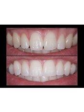 Dental Bonding - AMS Multispeciality Dental Clinic