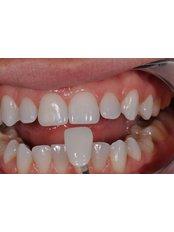 Porcelain Veneers - AMS Multispeciality Dental Clinic