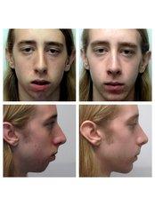 Sliding Genioplasty - AMS Multispeciality Dental Clinic