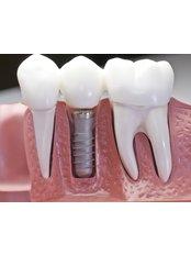 Dental Implants - AMS Multispeciality Dental Clinic