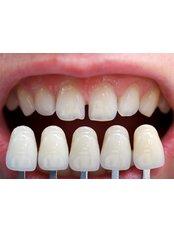 Veneers - AMS Multispeciality Dental Clinic