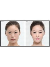 Jaw Contouring - AMS Multispeciality Dental Clinic