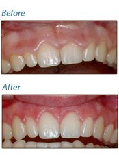 Gum Contouring and Reshaping - Bala Dental Clinic