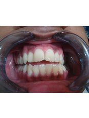 Laser Teeth Whitening - Dental Cosmetics and Implant Centre - Bangalore 2