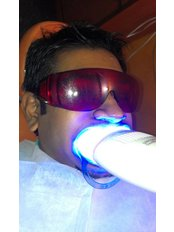 Teeth Whitening - Dental Cosmetics and Implant Centre - Bangalore 3