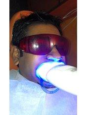 Teeth Whitening - Dental Cosmetics and Implant Centre - Bangalore