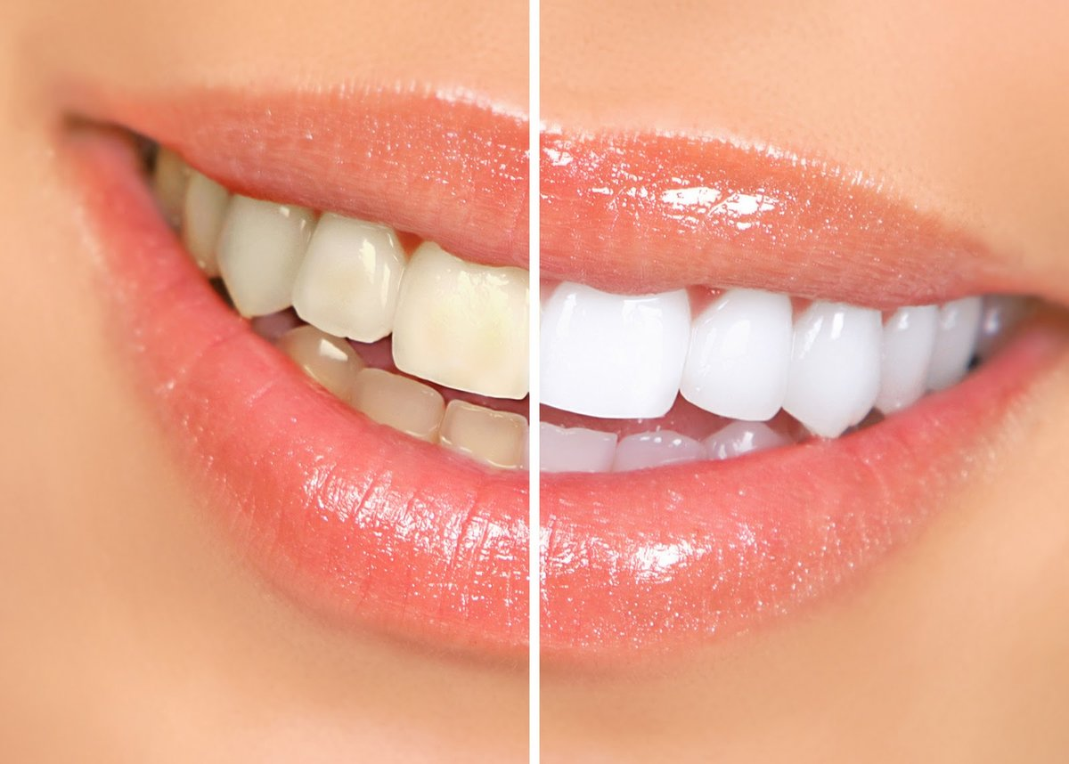 Dental solutions bangalore in bangalore india read 2 reviews clinic image 13 solutioingenieria Gallery
