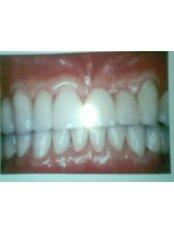 Dental Bridges - Nayan Dental Clinic