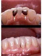Maryland Bridge - Nayan Dental Clinic