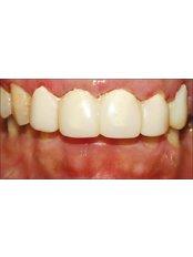 Temporary Bridge - Nayan Dental Clinic