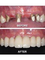 Implant Bridge - Nayan Dental Clinic