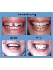 Dental Bonding - Dentique Calicut