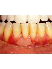 Gingivitis Treatment - Dentique Calicut