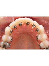 Lingual Braces - Dentique Calicut