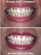 Gum Surgery - Dentique Calicut