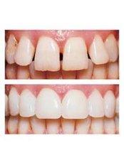 Porcelain Veneers - Dentique Calicut