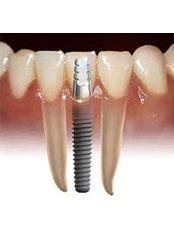 Dental Implants - Dentique Calicut