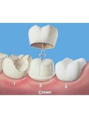 Dental Crowns - Dentique Calicut