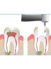 Root canals - Dentique Calicut